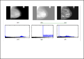 Breast Cancer Image Enhancement using Median Filter and CLAHE
