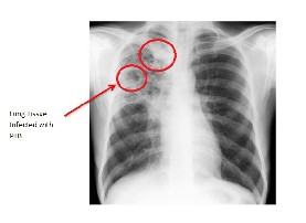 abdominal tuberculosis thesis Although small bowel obstruction is a common occurrence, it is essential that this clinical condition be treated properly,  abdominal tuberculosis: ct evaluation.