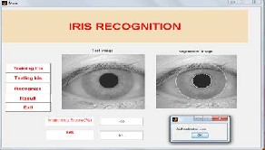 thesis on iris recognition High school help master thesis iris recognition writing a report writing services in less than 8 hours.