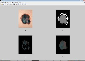 feature extraction in image processing pdf
