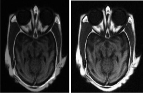Medical Image Fusion Based on Wavelet Transform