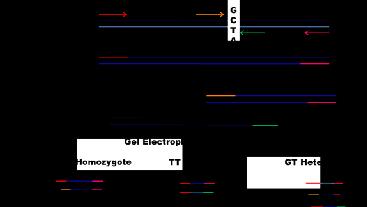 Tetra Primer Amplification Refractory Mutation System For Screening T2d Tcf7l2 Variant